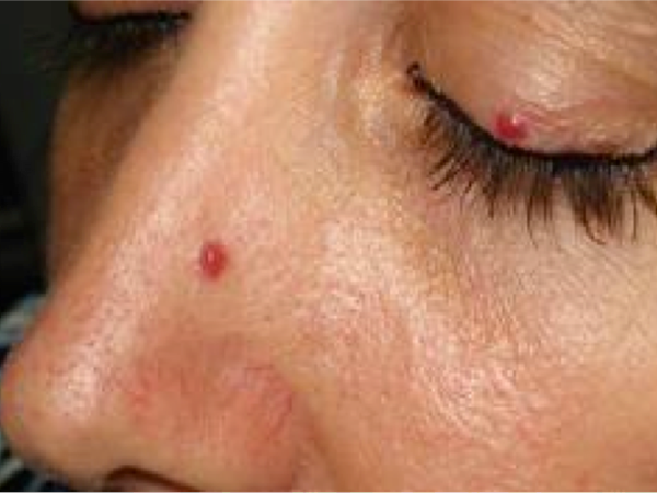 skin tag on nose and eyelids