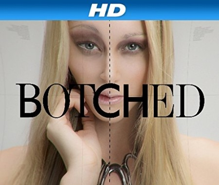 Botched S05E06 Nothing Butt Trouble HDTV x264-CRiMSON